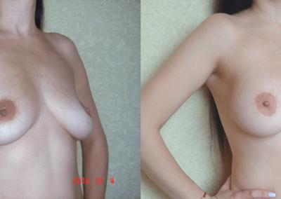 Увеличивающая маммопластика с периареолярной подтяжкой