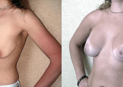 Увеличивающая маммопластика с вертикальной подтяжкой